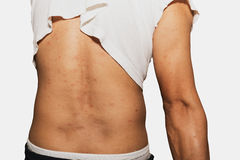 Allergieuitbarsting en gezondheidsprobleem Stock Foto