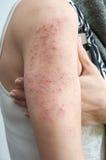 Allergische onbesuisde dermatitis Stock Foto's