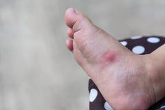 Allergisk överilad hud av behandla som ett barn den högra foten för ` s Royaltyfri Bild