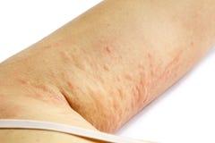 Allergisk överilad hud av den tålmodiga armen Arkivbild