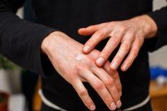 Allergisk hud för skrapa från eksem eller psoriasis och att applicera steroidmedicinkräm, sjukvård- och medicinconcpet Behandling arkivfoto