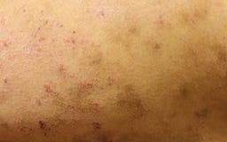Allergiska hudorganskador Arkivfoto