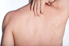 Allergy on back of man. Allergy rash on back of man isolated on white Royalty Free Stock Photo