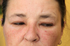 Allergy or conjunctivitis - close-up. From a swollen face Stock Images