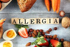 Free Allergy Food Concept. Allergy Food As Almonds, Milk, Cheese, Strawberry, Seeds, Eggs, Peanuts And .crustaceans Or Shrimps With Royalty Free Stock Image - 174886036