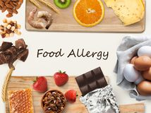 Collage of allergic food, isolated on white. Allergy food concept. Set of allergic food as nuts, honey, citrus fruits, eggs, chocolate, kiwi, strawberry and royalty free stock photo