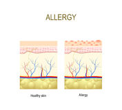 Allergy. healthy and skin with allergic reaction. Cross-section of the human skin Stock Photography