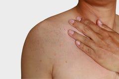 Allergy rash Stock Photos