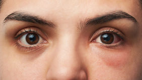 Allergy reaction on eye. Close up of two woman eyes with allergy reaction on one red eye royalty free stock image