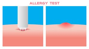 Allergy test vector. / white background Royalty Free Stock Photography
