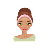 Allergy. Vector Illustration Royalty Free Stock Images