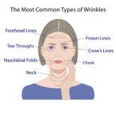 Allgemeine Arten von Gesichtsfalten Schönheitschirurgie Frauengesichtsbehandlungsbehandlung stock abbildung