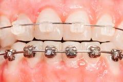 Allineamenti di dente con i ganci del metallo e ceramici Immagini Stock Libere da Diritti