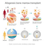 The allogeneic transplant process. Royalty Free Stock Photos