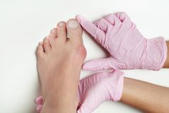 Alluce valgo, borsite dell'alluce nel piede della donna su fondo bianco Fotografia Stock Libera da Diritti