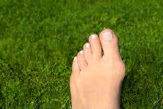 Alluce valgo, borsite dell'alluce nel piede della donna sul fondo dell'erba Immagine Stock Libera da Diritti