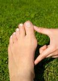 Alluce valgo, borsite dell'alluce nel piede della donna sul fondo dell'erba Immagini Stock Libere da Diritti