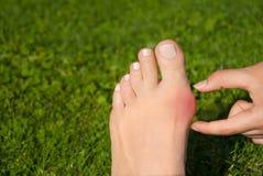 Alluce valgo, borsite dell'alluce nel piede della donna sul fondo dell'erba Fotografia Stock
