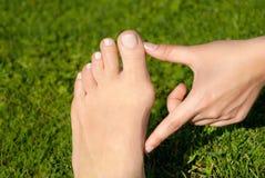 Alluce valgo, borsite dell'alluce nel piede della donna sul fondo dell'erba Fotografie Stock