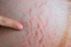 allungamento addominale della pelle durante la gravidanza Fotografia Stock Libera da Diritti