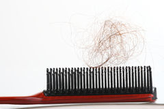 Alopecia. Close-up of a hairbrush with lost hair in it Royalty Free Stock Image