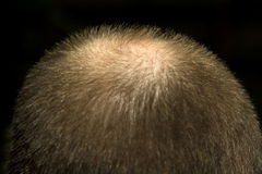 Alopecia. Nape of the businessman growing bald from stress on a dark background Stock Photos
