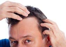 Alopecia androgena Fotografie Stock