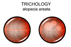 Alopecia areata Trichology απεικόνιση αποθεμάτων