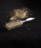 Alopecia concept hairbrush full of loss hair. Hairbrush with lots of hairs royalty free stock photo