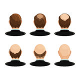 Alopecia concept. Set of heads showing the hairloss progress. Royalty Free Stock Image