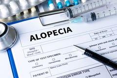 ALOPECIA male head , alopecia air loss haircare medicine bald tr Royalty Free Stock Images