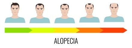 Alopecia maschio del modello illustrazione di stock