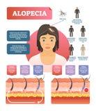 Alopecia - włosianej straty autoimmune choroby diagrama medyczna wektorowa ilustracja royalty ilustracja