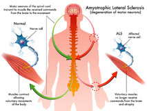 ALS (sclerosi laterale amiotrofica) royalty illustrazione gratis