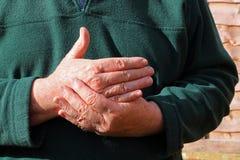 Alt bemannt rechte Hand Schmerz, Arthritis lizenzfreie stockfotografie