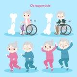 Alte Leute mit Osteoporose Stockfotos