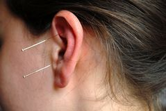 Alternatieve Therapie: acupunture Stock Foto