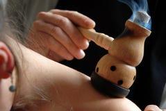 Alternatieve Therapie: moxa Royalty-vrije Stock Afbeeldingen