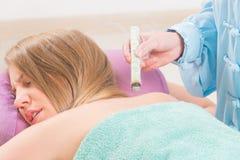 Alternative medicine therapist doing moxa treatment Royalty Free Stock Photo