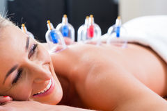 Alternative practitioner cupping woman. In course of alternative therapy treatment stock image