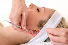 Alternative practitioner treating woman with acupuncture. Royalty Free Stock Image