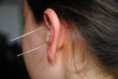 Alternative Therapie: Akupunktur Stockbilder