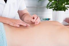 Alternativmedizin Nahaufnahmemannesrückseite mit Stahlnadeln während des Verfahrens von Akupunktur Lizenzfreie Stockfotografie