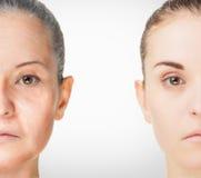 Alterungsprozess, Verfahren der Verjüngungsantialtern-Haut Lizenzfreies Stockfoto