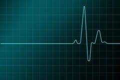 Alto cardiograma del resulation Foto de archivo