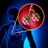 Alvéolos de los pulmones - anatomía humana del sistema respiratorio Fotografía de archivo