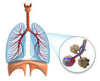 Free Alveoli In Lungs - Blood Saturating By Oxygen Royalty Free Stock Photography - 23394317