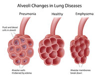 Alveoli in lung diseases. Alveoli changes in different lung diseases, eps8, gradient and mesh printing compatible Stock Image