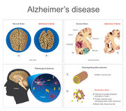 Alzheimer's  disease. Brain cells die, neuron diseased, certain areas of brain shrink memory loss or changes in memory for people age 65 and up at risk Royalty Free Stock Photography