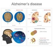 Alzheimer's sjukdom royaltyfri illustrationer